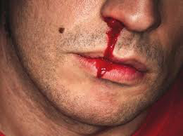 This is what a snowmobiling nosebleed looks like.